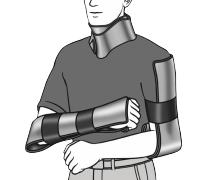Xpozed - SAM Medical SAM Splint Användningsområden